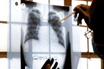 врач смотрит рентгеновский снимок, рак легких