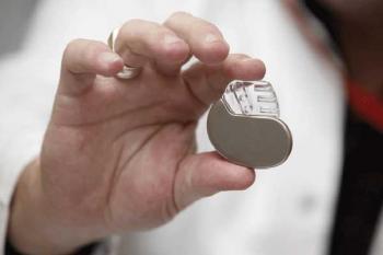 Установка кардиостимуляторов