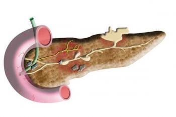 Ученые нашли ген, который является риском панкреатита