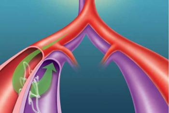 Имплантат для лечения гипертонии