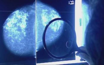 Ученые ищут с чем связан риск развития рака молочной железы