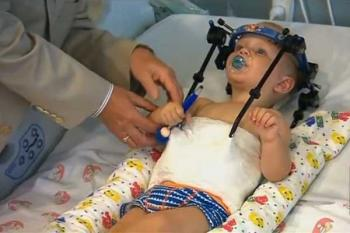 Нейрохирурги спасли ребенка без головы