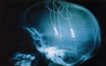 протез мозга