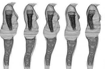 Распределение жира по телу