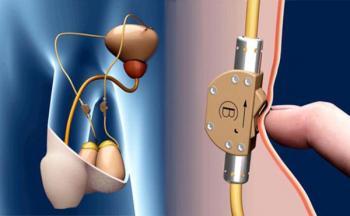 Переключатель семяизвержения - революционный имплантат
