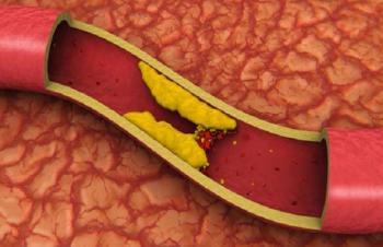 Снижение холестерина при диабете