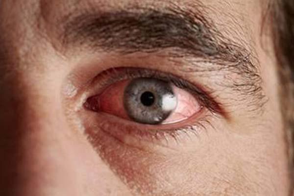Диабетическая ретинопатия: опасное осложнение диабета, видео