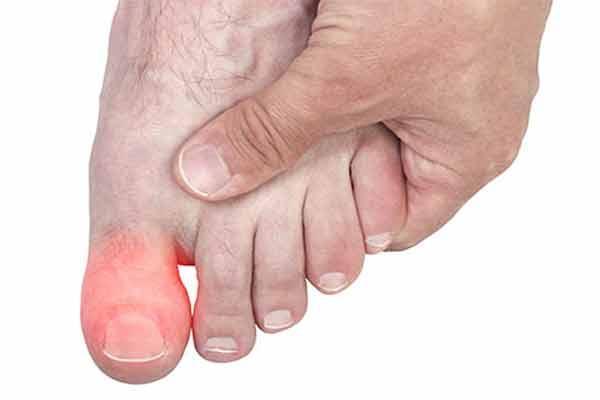 Что именно болит подушечка косточка ноготь сустав