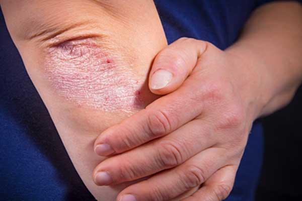 пиелонефрит заразен ли