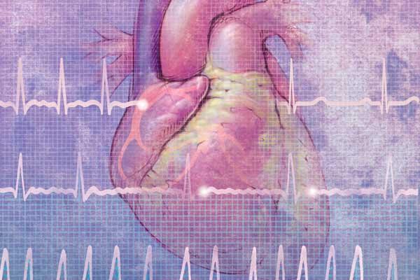 Мерцательная аритмия, сердце на фоне кардиограммы