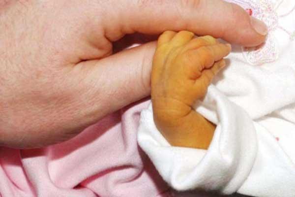 Желтуха новорожденного ребенка