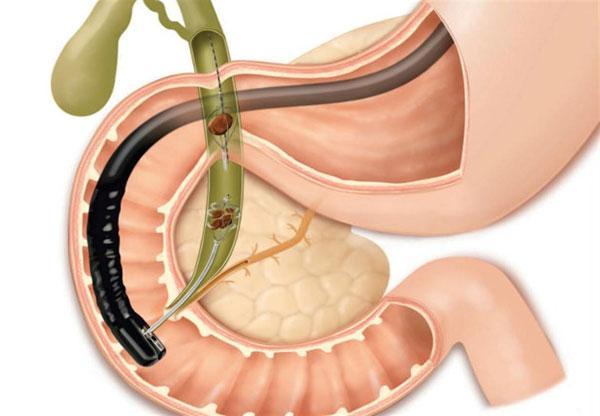 Эзофагогастродуоденоскопия (ЭГДС)