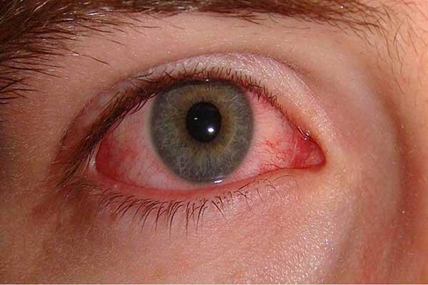 Проблемы с сосудами в глазах - симптомы болезни Кавасаки