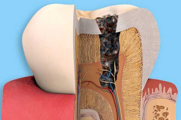 Как кариес разрушает зуб
