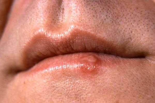 Симптомы сифилиса на губе у мужчины