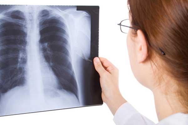Бронхоэктатическая болезнь: симптомы и осложнения