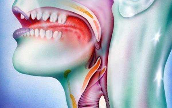 Симптомы мононуклеоза