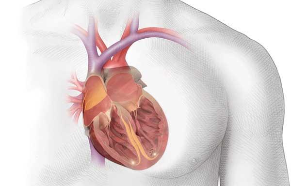 Лечение мерцательной аритмии (фибрилляции предсердий)