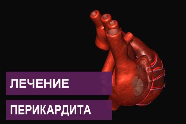 Как лечить перикардит сердца