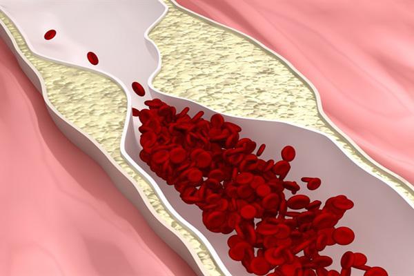 Диагностика атеросклероза сосудов