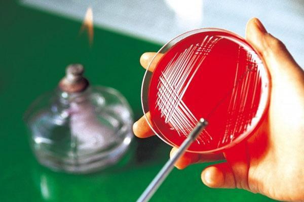 Оборудование для диагностики гонореи