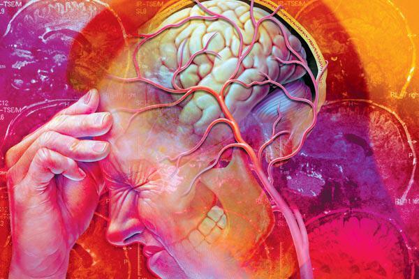 Нейроциркуляторная дистония: симптомы, типы, лечение