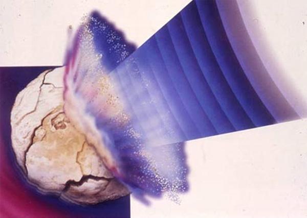 Дробление камней в почках: подготовка, описание, риски