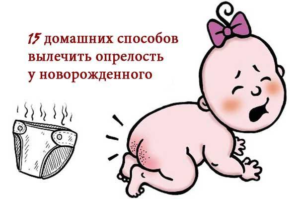 опрелости фото у новорожденного