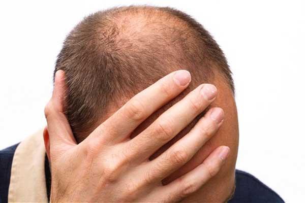 Помогите вернуть волосы на голове