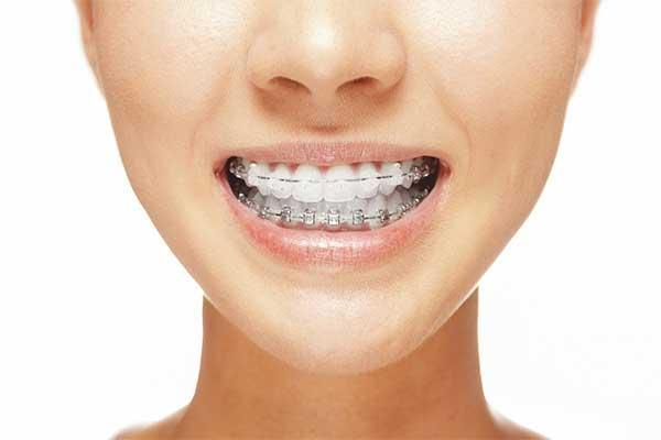 Правильный уход за брекетами зубов