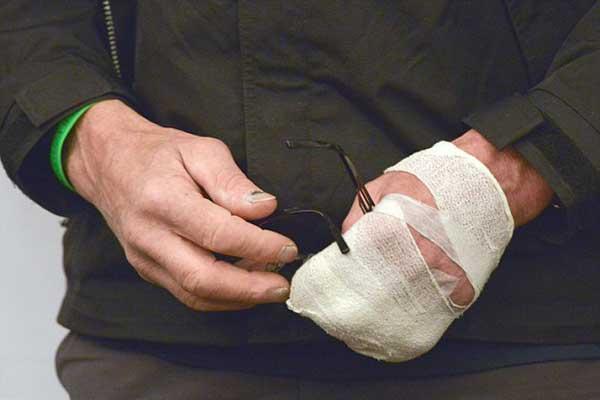 Причины онемения пальцев   MEDSIDE