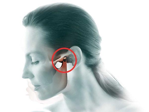 Боль в челюсти – причины и что делать?
