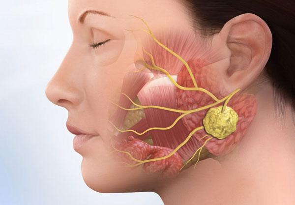 Гнойное воспаление в полости рта: симптомы и диагностика