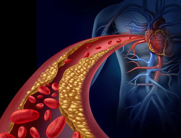 Как понизить холестерин: пять природных средств