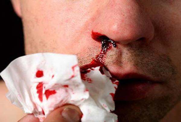 Кровь из носа: когда идти к врачу