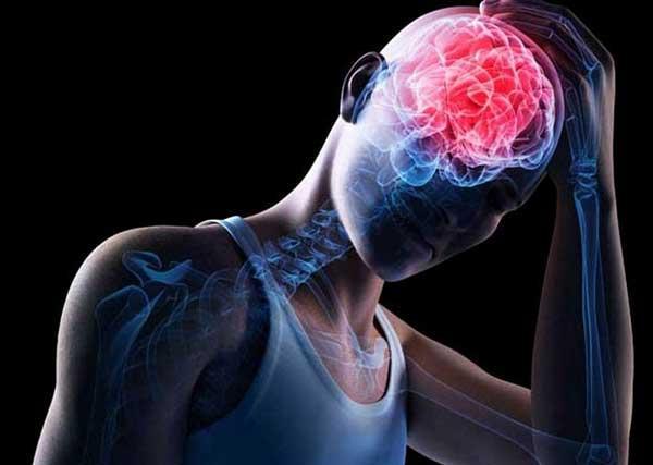 Как избежать осложнений после сотрясения мозга