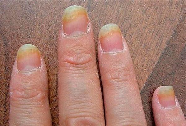 Виды грибковых инфекций ногтей