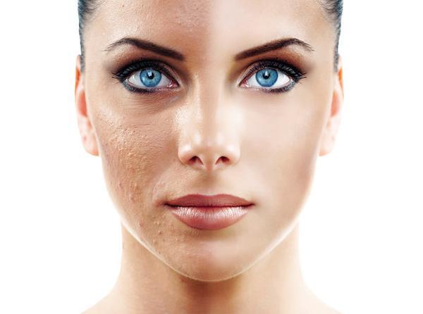 Лазерная шлифовка кожи: описание процедуры
