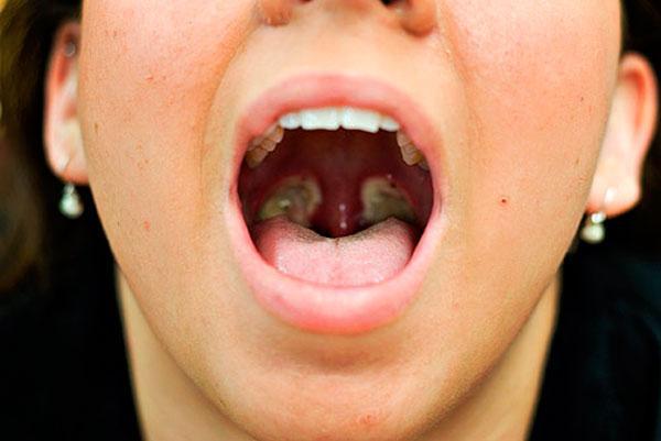 после удаления миндалин запах изо рта пропал