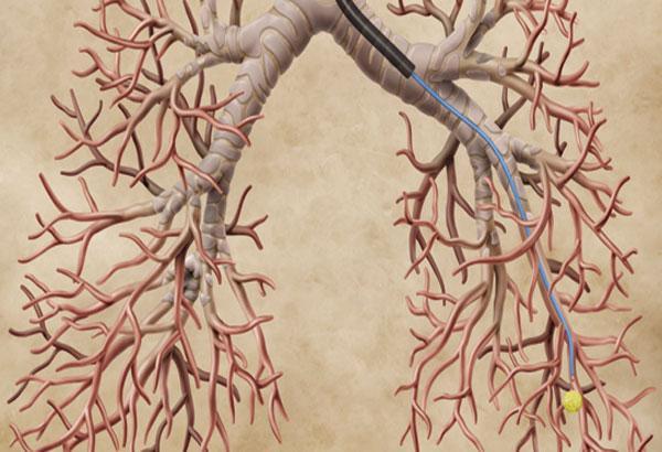 Бронхоскопия: что это за процедура и как проводится
