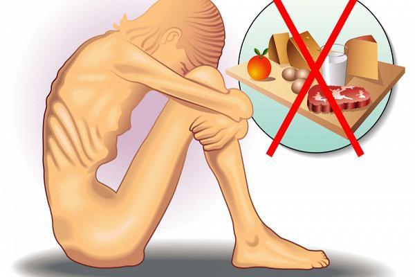 Чем опасна нервная анорексия