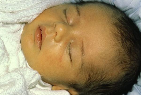 как выглядит желтуха у новорожденных