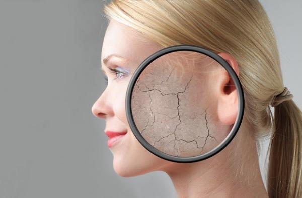 ксероз кожи лица фото
