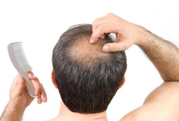 Болезнь волос облысение