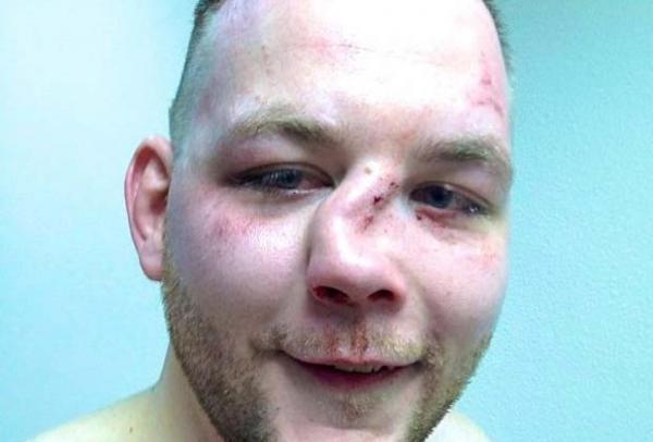 перелом носа симптомы фото
