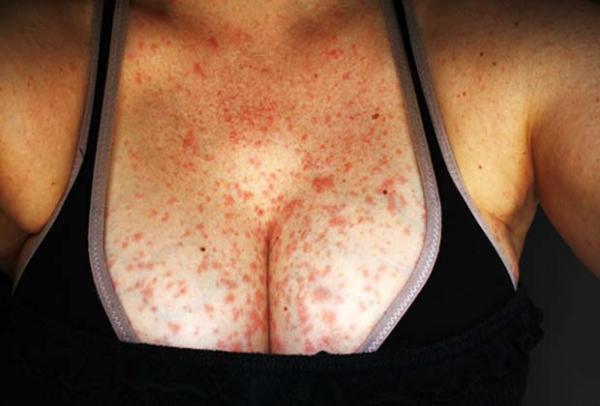 аллергия на антибиотики комаровский