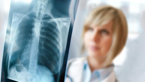 микоплазменная пневмония лечение