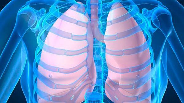 Пневмония: как снизить риски