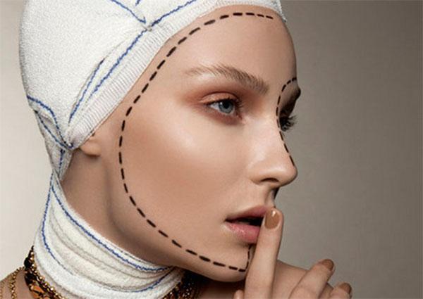 Подтяжка лица: описание процедуры