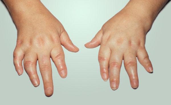 ревматоидный артрит и золото